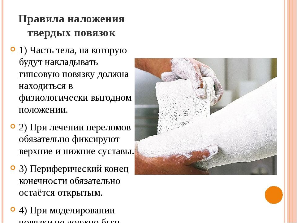 Правила наложения твердых повязок 1) Часть тела, на которую будут накладывать...