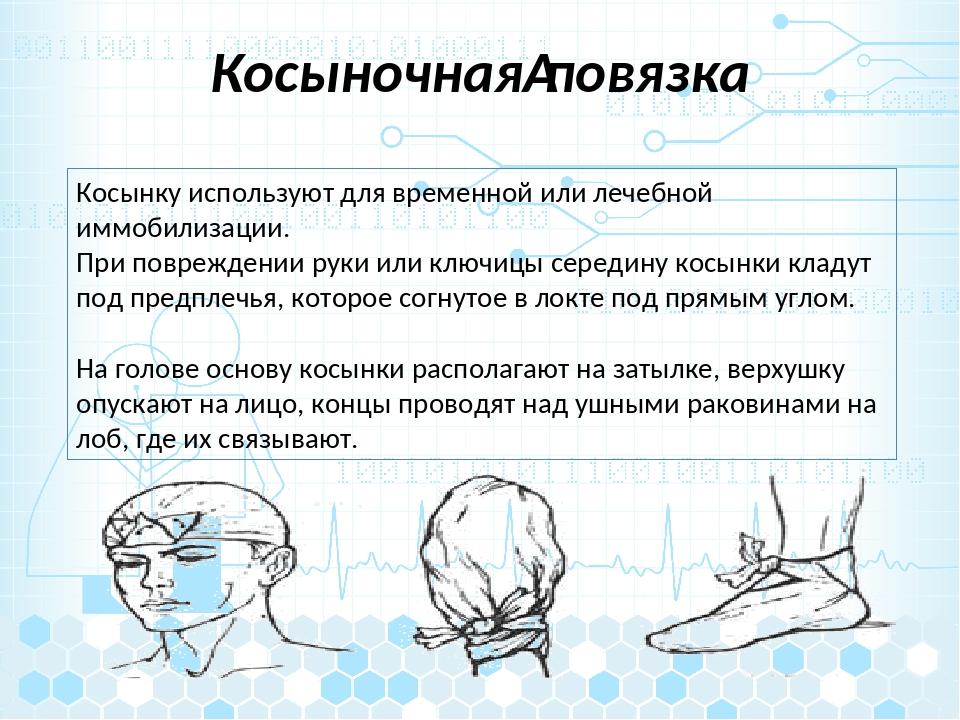 Косыночнаяповязка Косынку используют для временной или лечебной иммобилизаци...