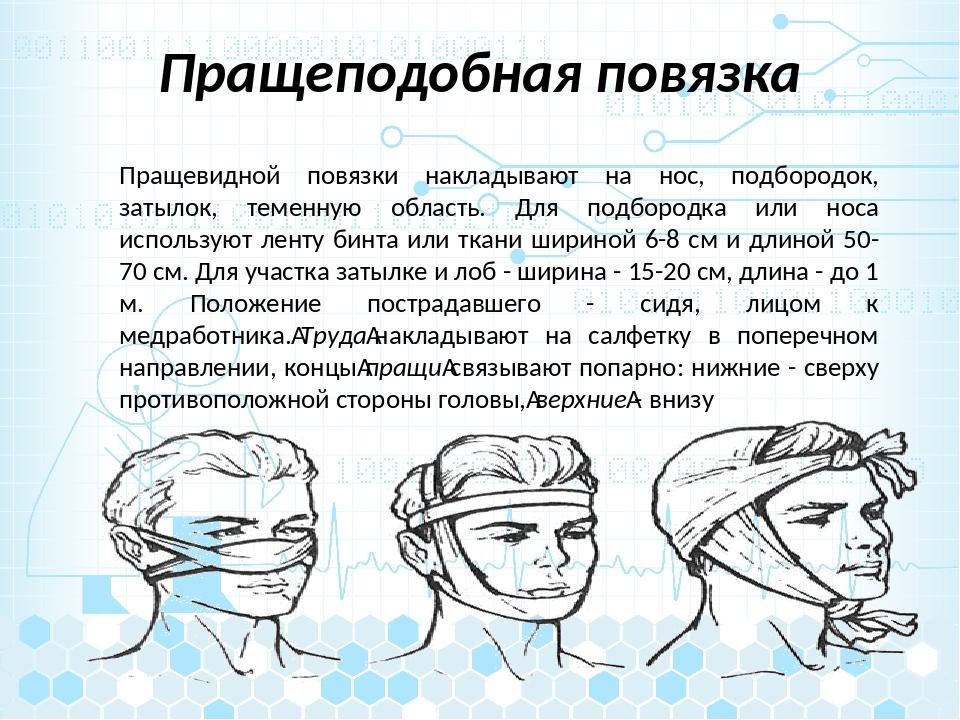 Пращеподобная повязка Пращевидной повязки накладывают на нос, подбородок, зат...