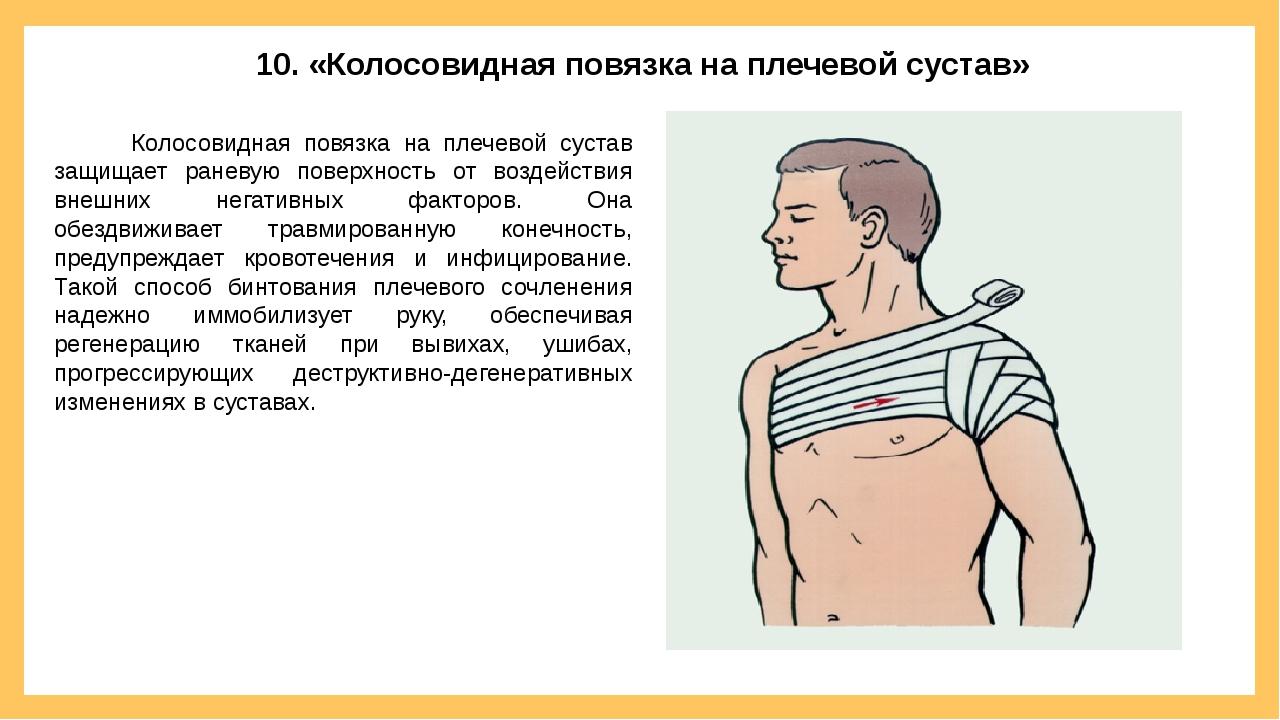 10. «Колосовидная повязка на плечевой сустав» Колосовидная повязка на плечево...