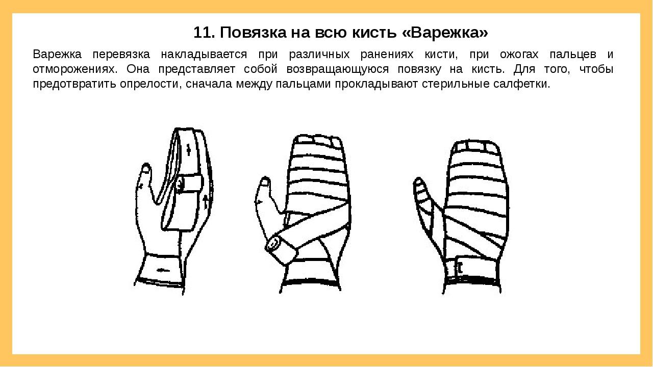 11. Повязка на всю кисть «Варежка» Варежка перевязка накладывается при различ...
