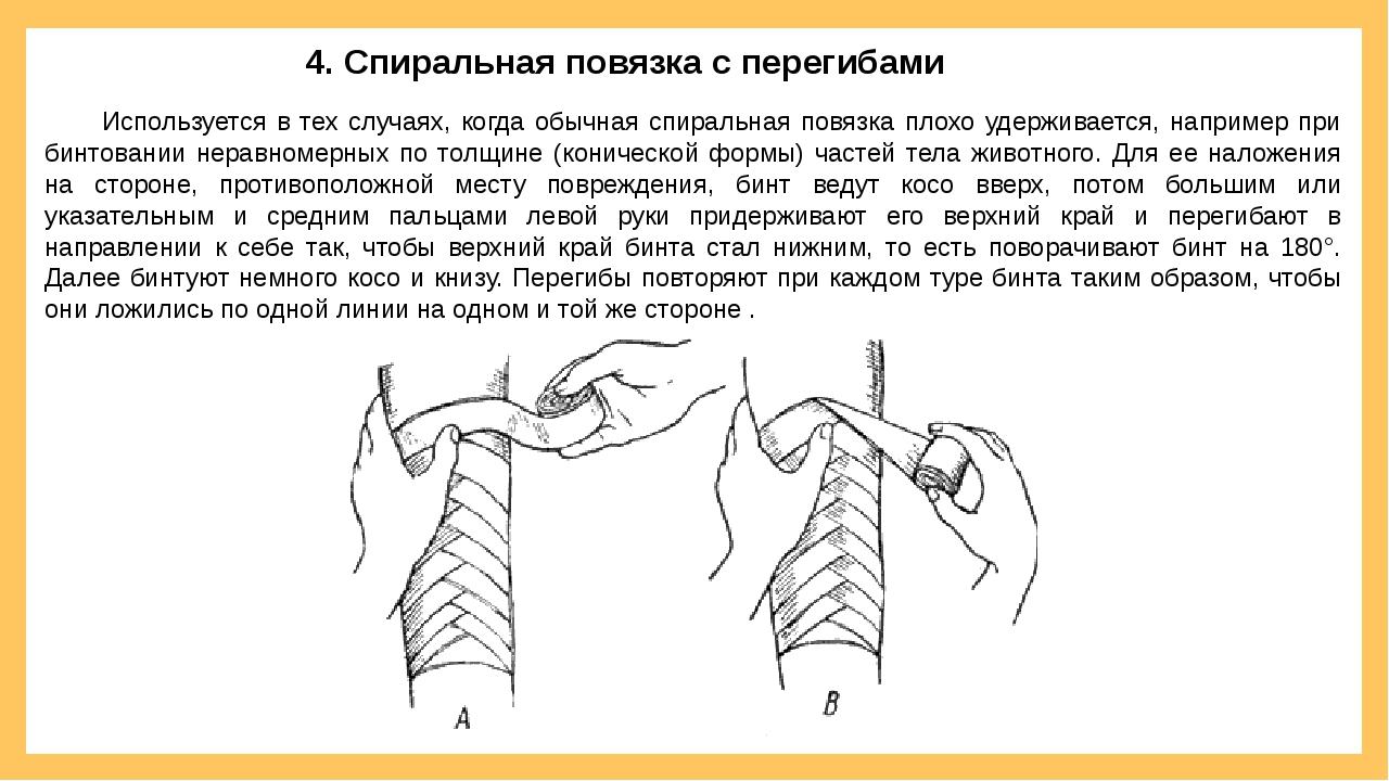 Используется в тех случаях, когда обычная спиральная повязка плохо удерживае...