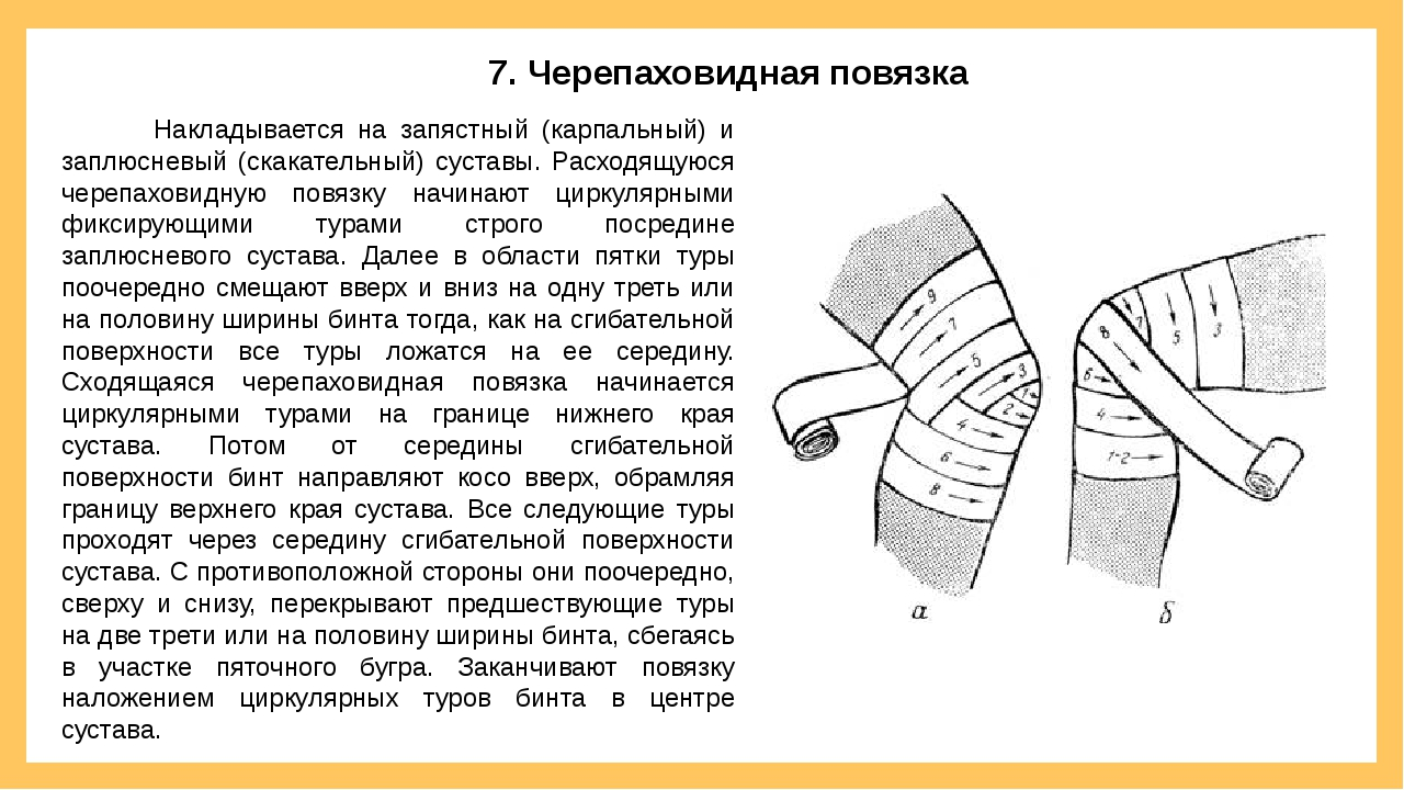 Накладывается на запястный (карпальный) и заплюсневый (скакательный) суставы...