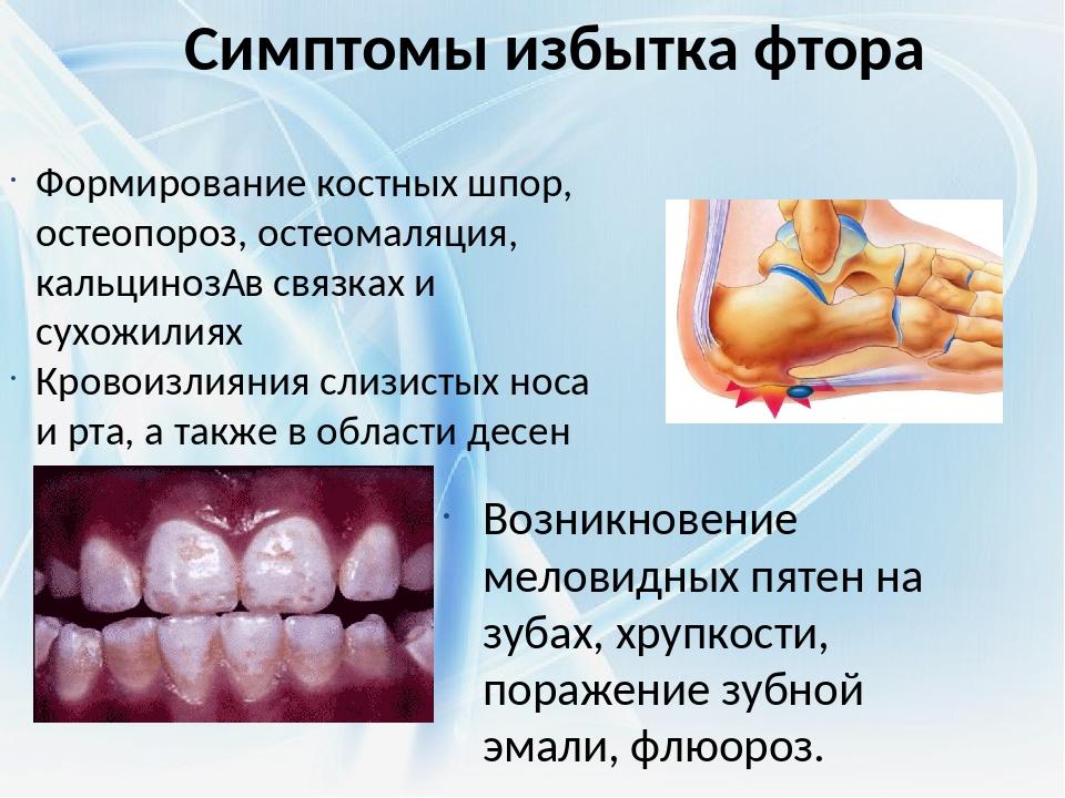 Симптомы избытка фтора Возникновение меловидных пятен на зубах, хрупкости, по...