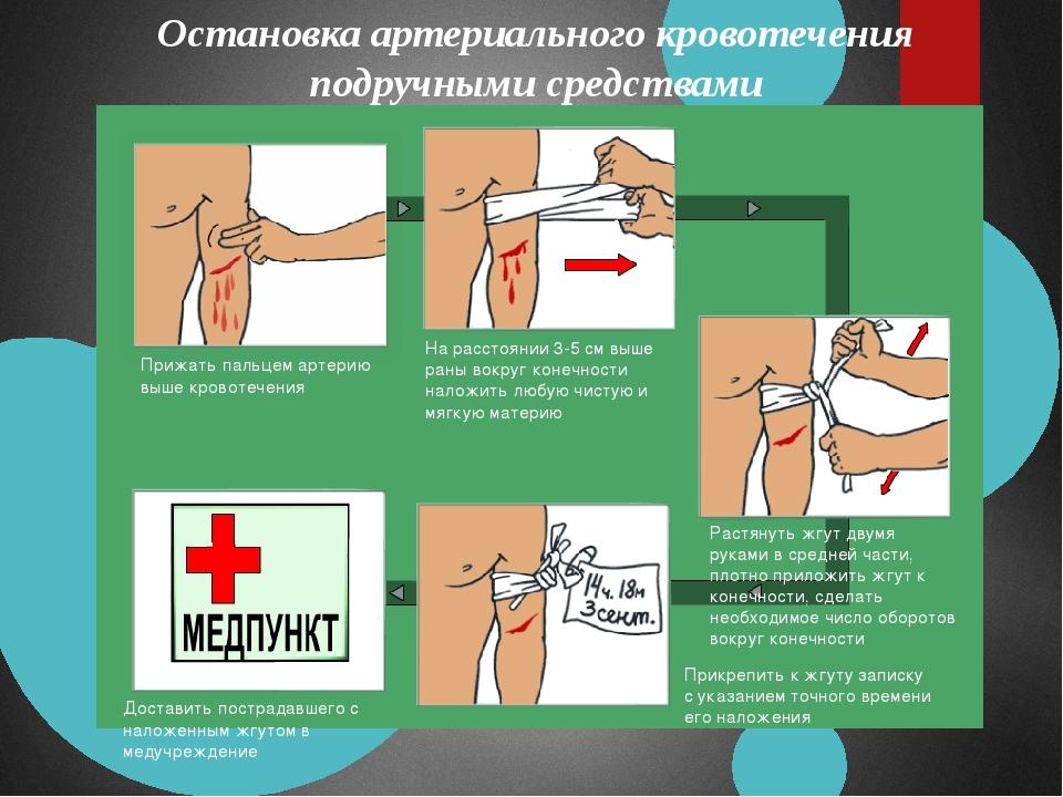 Остановка артериального кровотечения подручными средствами Прижать пальцем а...