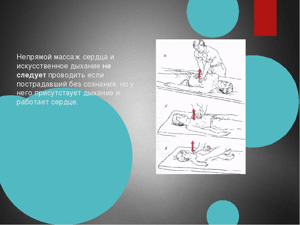 Непрямой массаж сердца и искусственное дыханиене следуетпроводить если пос...
